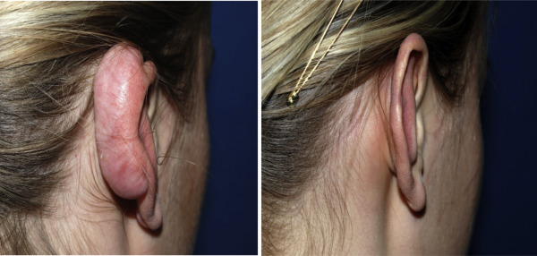 efficacy of radiation treatment for recurrent keloids essay Management of loco-regionally recurrent melanoma  intra-tumoural injection therapy or external beam radiation therapy  management of loco-regionally recurrent.